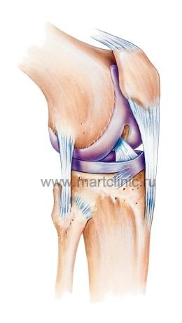 Артроз коленного сустава мед центр